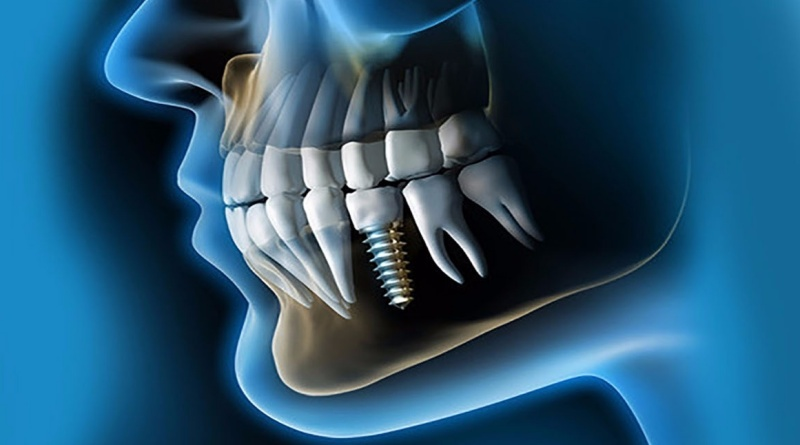 Implantes-dentales-Valencia